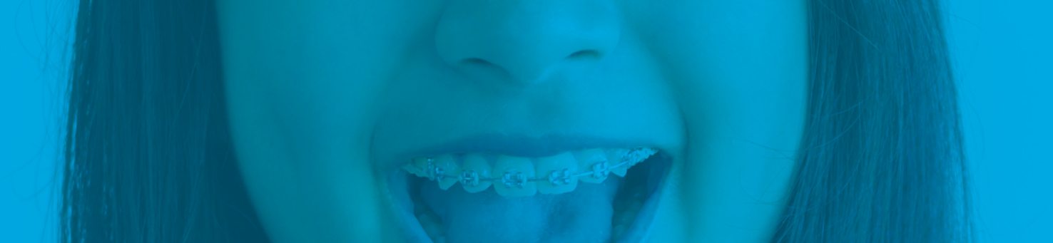 Is It Safe to Straighten Teeth at Home? | BLOS